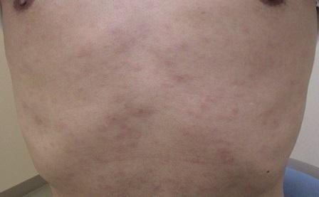 梅毒患者数9人 尖圭コンジローマ43人 性器ヘルペス27人|横浜市